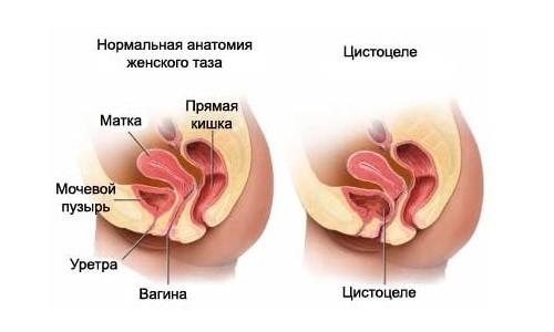 Нормальная анатомия женского таза и цистоцеле
