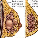 Виды молочных желёз с фиброзно-кистозной мастопатией и в норме
