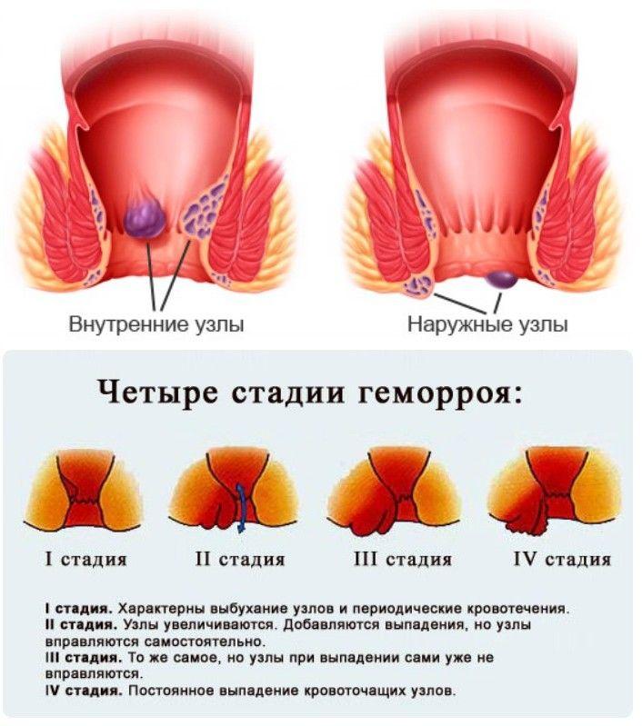 послеродовой геморрой лечение при грудном вскармливании