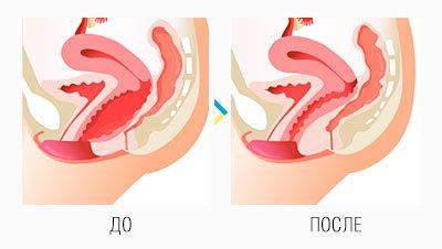 Вагинопластика: схема до и после операции