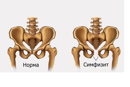 Симфиз — норма и патология на примере скелета