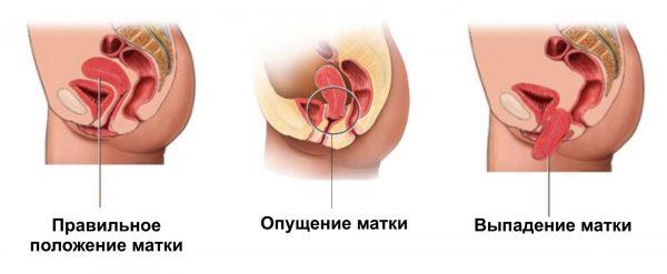 Опущение и выпадение матки: схема