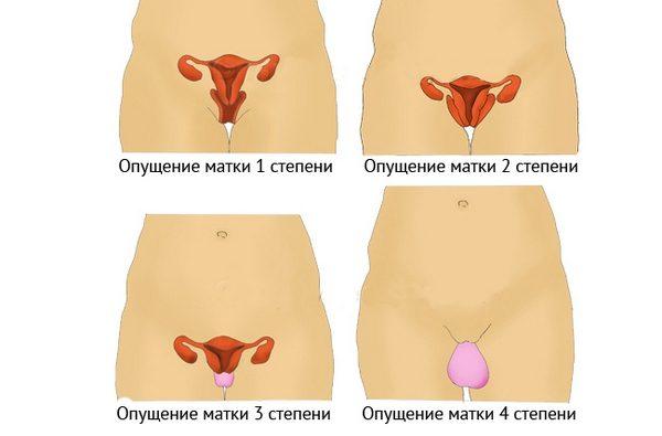 Степени опущения матки