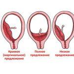 Виды неправильного расположения плаценты