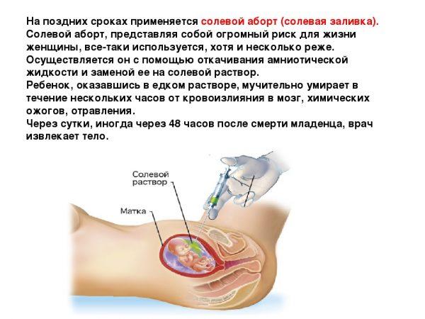солевой аборт
