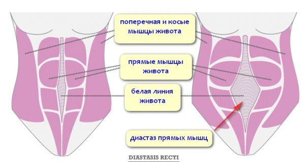 Диастаз