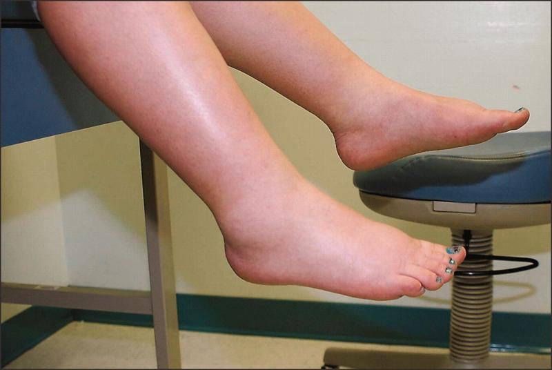 Отёк ног