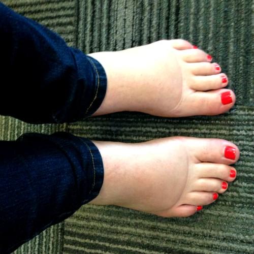 Отёки ног