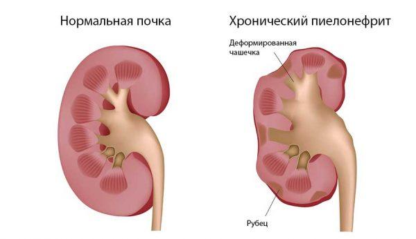 Здоровая почка и почка, поражённая хроническим пиелонефритом