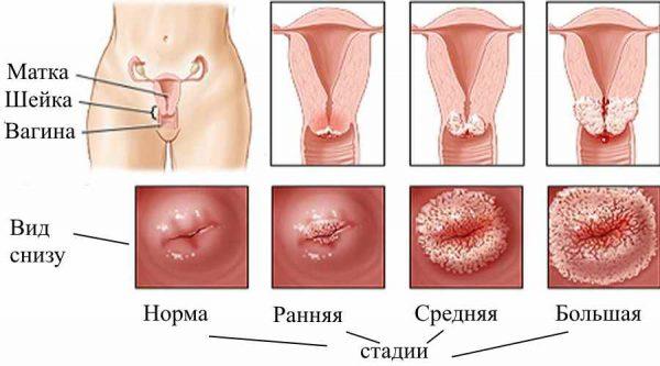 Разные стадии эрозии шейки матки
