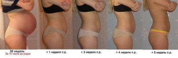 Фигура до и после родов