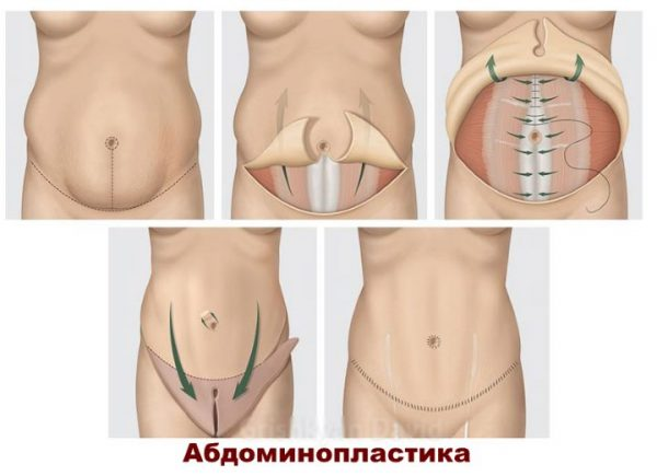 Схема абдоминопластики