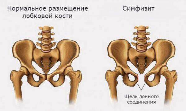 Схема таза в норме и при симфизите
