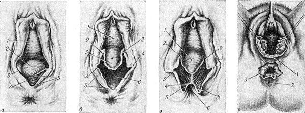 Схематическое изображение разрывов промежности, связанных с родами