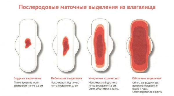 Определение количества лохий