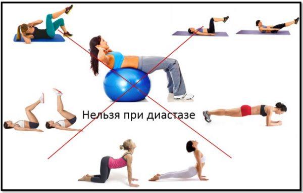 Упражнения, которые нельзя делать при диастазе