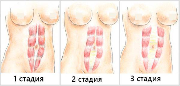 Степени развития диастаза