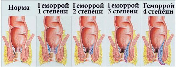 4 степени развития геморрооя