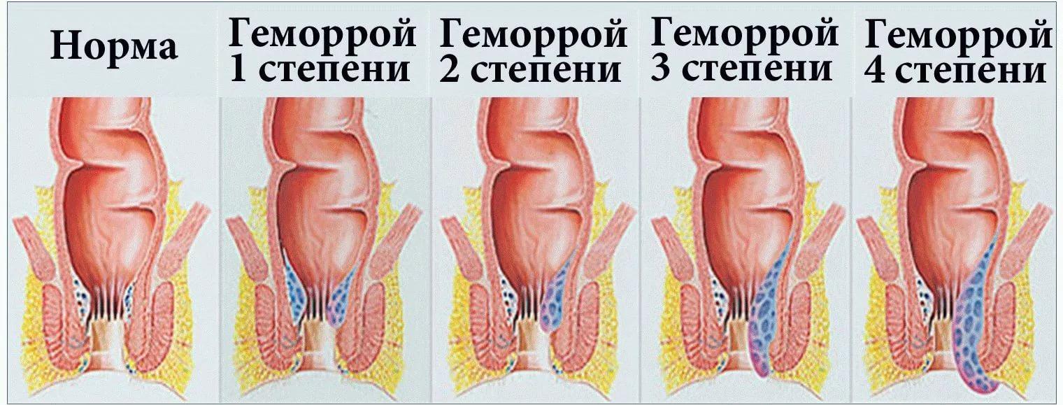 Лечение геморроя при грудном кормлении