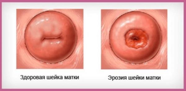 Шейка матки в норме и с эрозией