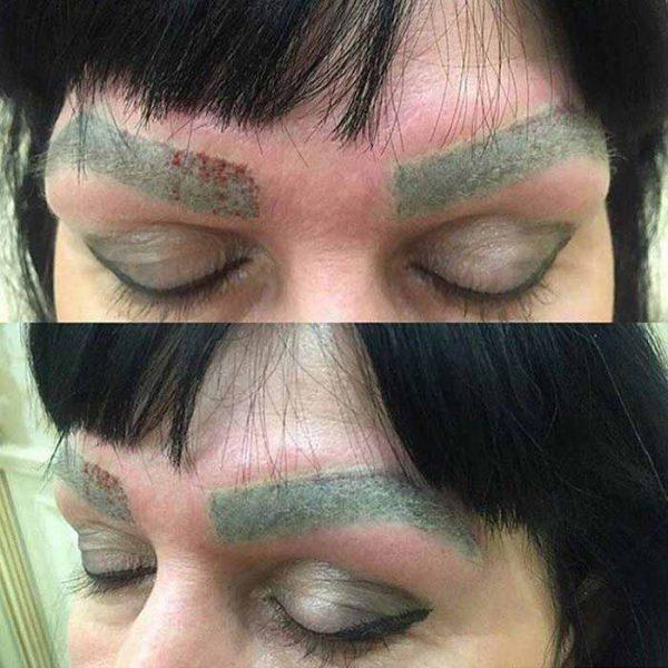 Зелёные брови после татуажа