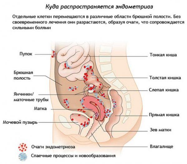 Как распространяется эндометриоз