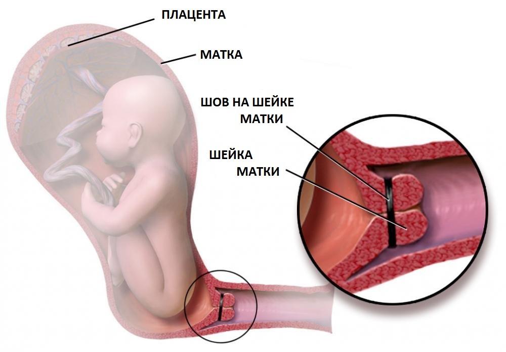 Клинические симптомы переношенной беременности выражены неярко.