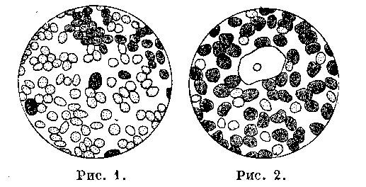 Вид лохий под микроскопом во 2-й и 5-й день после родов