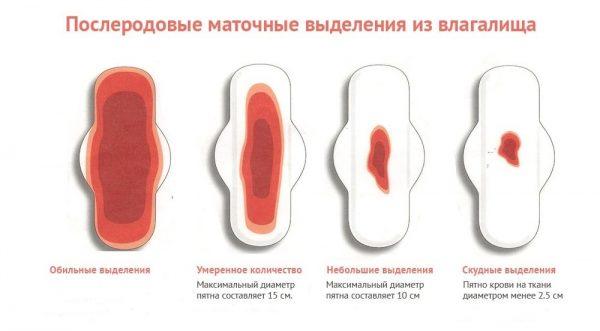 Послеродовые маточные выделения из влагалища