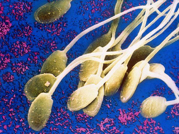 сперматозоиды на схеме