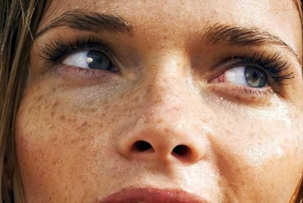 Пигментация кожи лица поселе загара у женщины