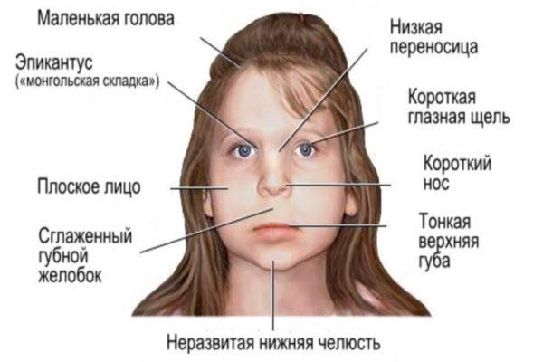 Перечень нарушений строения головы и лица при фетальном алкогольныом синдроме (ФАС)